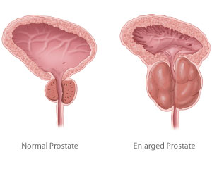 Normal Prostate, Enlarged Prostate