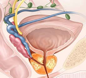 Prostate Cancer Confined to the gland is curable